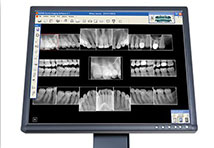Digital Dental Xrays Wakefield MA
