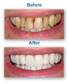 Smile Makeover Dentist Wakefield MA