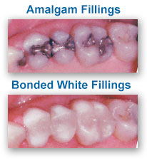 White Dental Fillings Dentist Wakefield MA